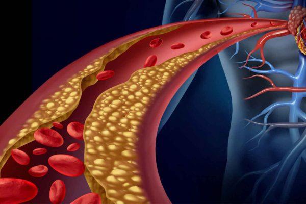 prevenir-dislipidemia-pacientes-diabetes