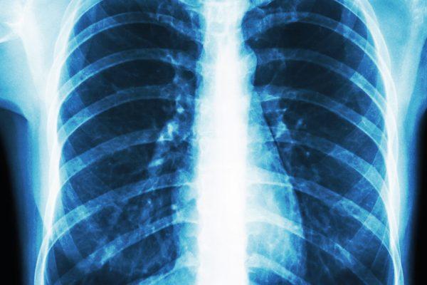 pulmonar-01de
